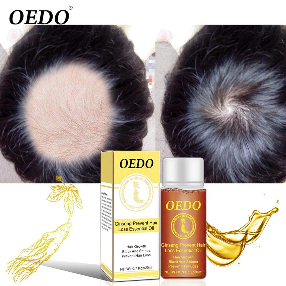 Ginseng Hair Growth Essence Anti Hair Loss Liquid 20ML Fast Restoration Dense Hair Growth Serum Powerful Repair Hair Root
