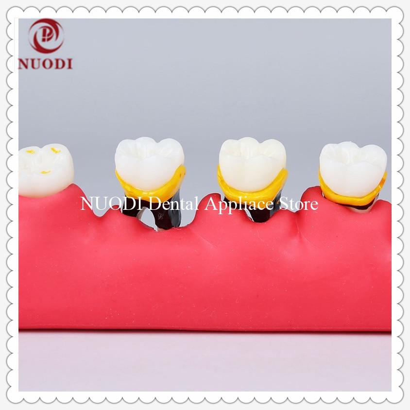 Periodontal Diseas Teeth Model Showing Occlusal Trauma/Odontologia Periodontal Disease Dental Teeth Model/Dental Study Model