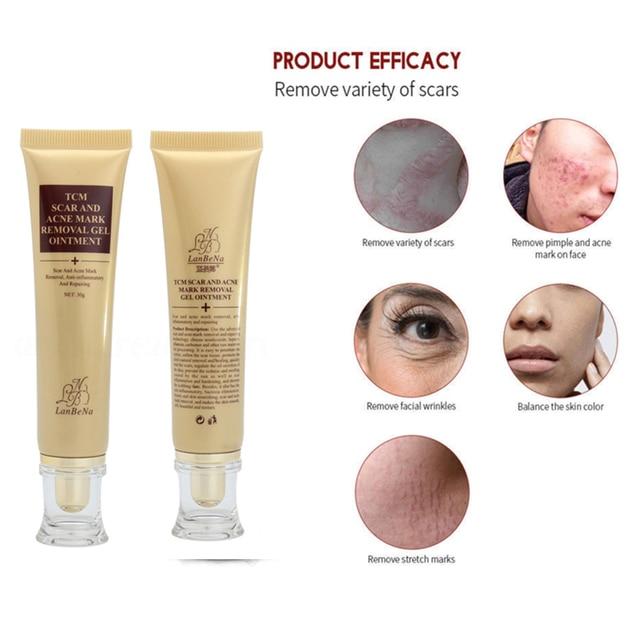 Crème d'élimination des cicatrices d'acné 30g pour les taches de soin de la peau du visage traitement des cicatrices d'acné réparation des vergetures crème de grossesse blanchissante TSLM2