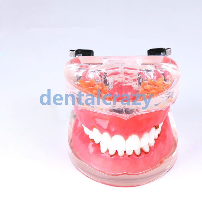 2019 Dental Typodont Teeth Model Adult Pathological Periodontal disease 4017#2019 Dental Typodont Teeth Model Adult Pathological Periodontal disease 4017#