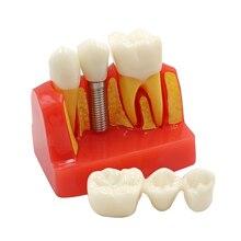 1 шт. импланты зубов Модель 4/четыре раза стоматологические смолы кварцевые Резиновые зубы модель Стоматолог обучения патологий модель