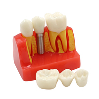 1pc Dental Implant Teeth Model 4/Four Times Dental Resin Quartz Rubber Teeth Model Dentist Teaching Training Pathology Model