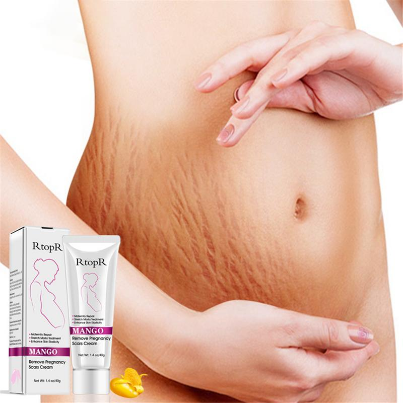 1pcs Mango Remove Pregnancy Scars Acne Cream Stretch Marks Treatment Maternity Repair Anti-Aging Anti Winkles Firming Body Cream