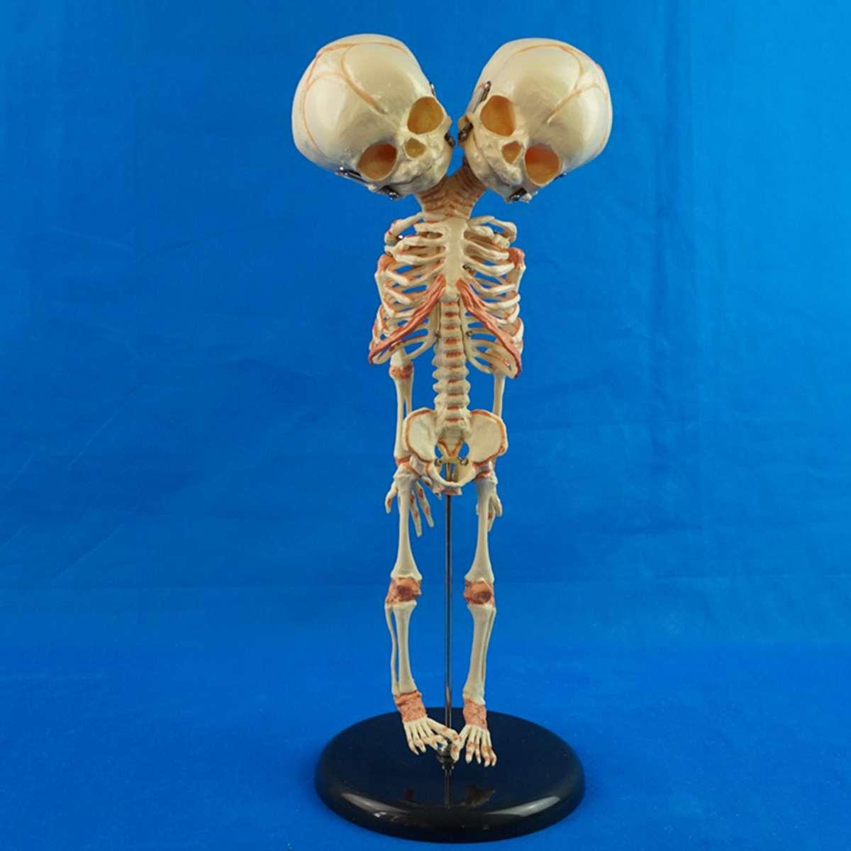 13*15*37 CM Humains Nouveau Double Tête Bébé Anatomie squelette de crâne Anatomique Cerveau D'enseignement D'anatomie Modèle Anatomique Étude affichage