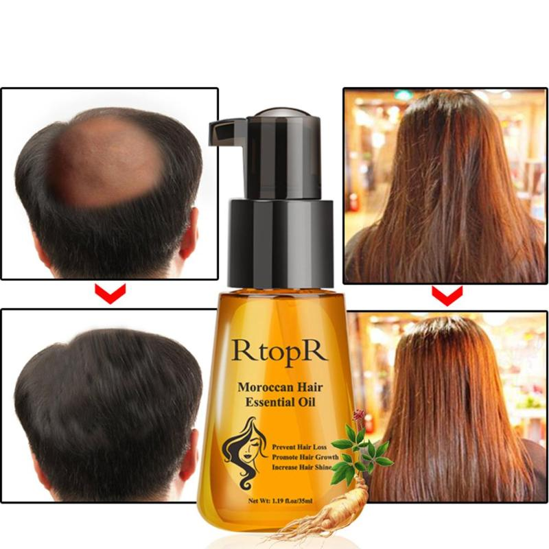 35ml Prevent Hair Loss Product Hair Growth Essential Oil Easy To Carry Hair Care