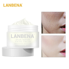 Facial Cream 30g Snail Repair Whitening Day Cream Anti Wrinkle Anti Aging Acne Treatment Moisturizing Firming Skin Care
