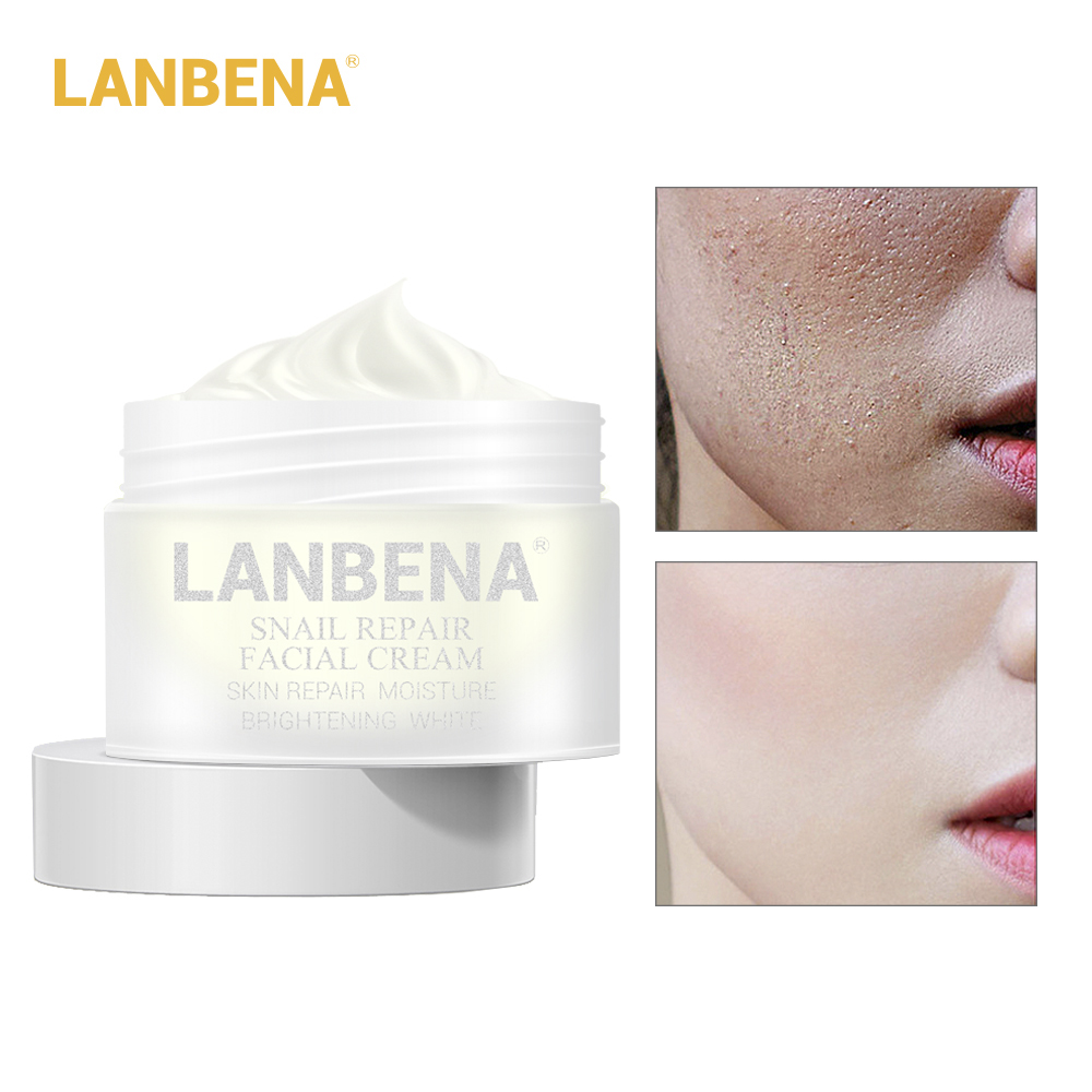 LANBENA Facial Cream 30g Snail Repair Whitening Day Cream Anti Wrinkle Anti Aging Acne Treatment Moisturizing Firming Skin Care