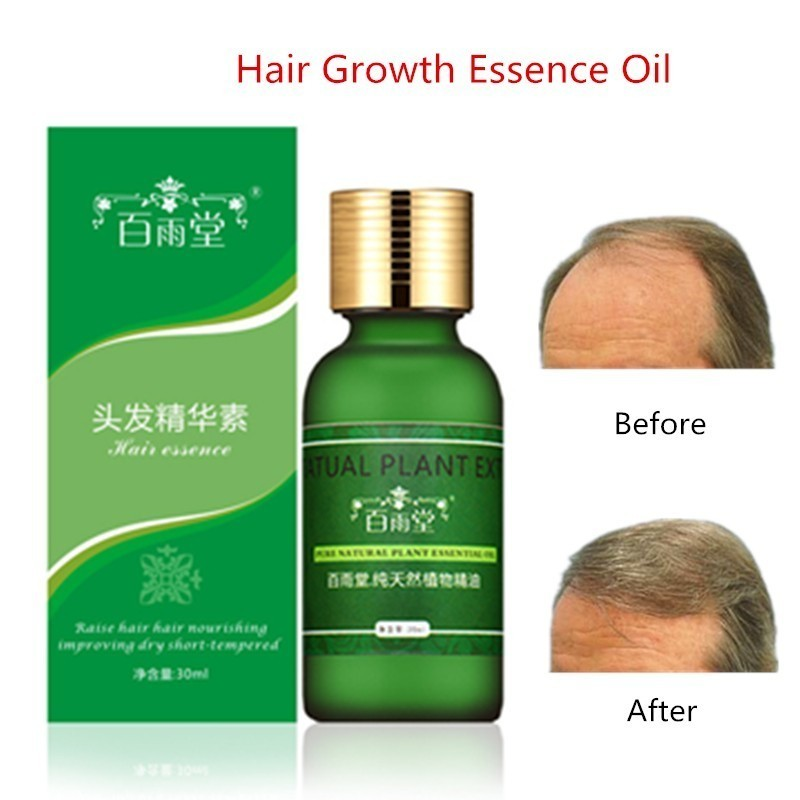 30ml Hair Growth Essential Oils Original Authentic Hair Loss Liquid Health Care Beauty