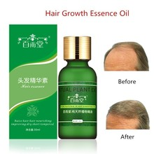 30ml Hair Growth Essential Oils Original Authentic Hair Loss Liquid Health Care Beauty Dense Hair Growth Serum Hair Care