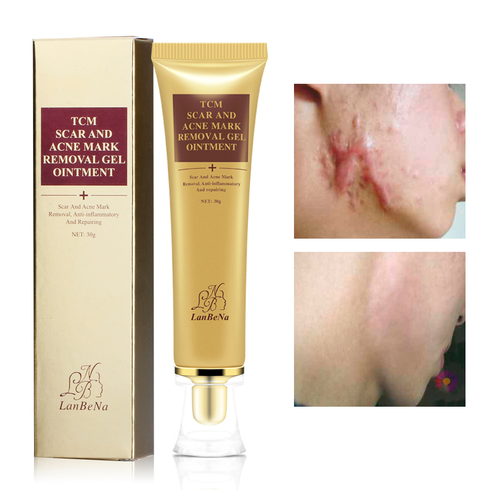 LANBENA Acne Scar Removal Cream Against Black Dots Scar Removal Facial Blackhead Acne Treatment