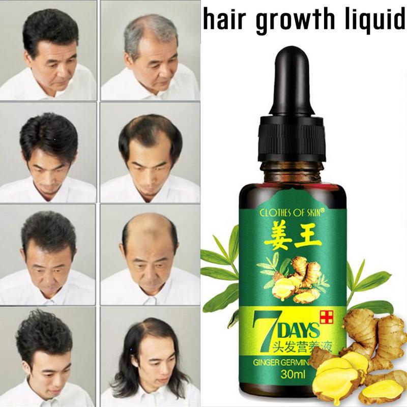 Hair Growth 30ml Women Men Hair Care Growth Essence Liquid Fast Restoration Hair Natural Hair Loss Treatment Nutrition Tool