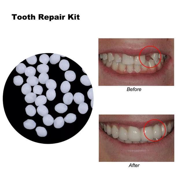 10g/100g dentadura pegamento sólido Restauración Dental Kit de reparación de dientes temporal herramienta de cuidado bucal