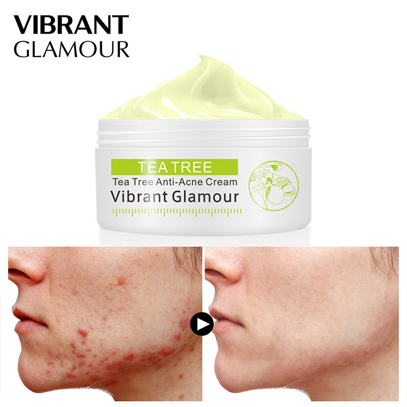 VIBRANT GLAMOUR Tea Tree Anti-Acne Face Cream Acne Scar Cream Shrink Pores Facial Eliminates Acnes Cream Oil Control Repair Spot