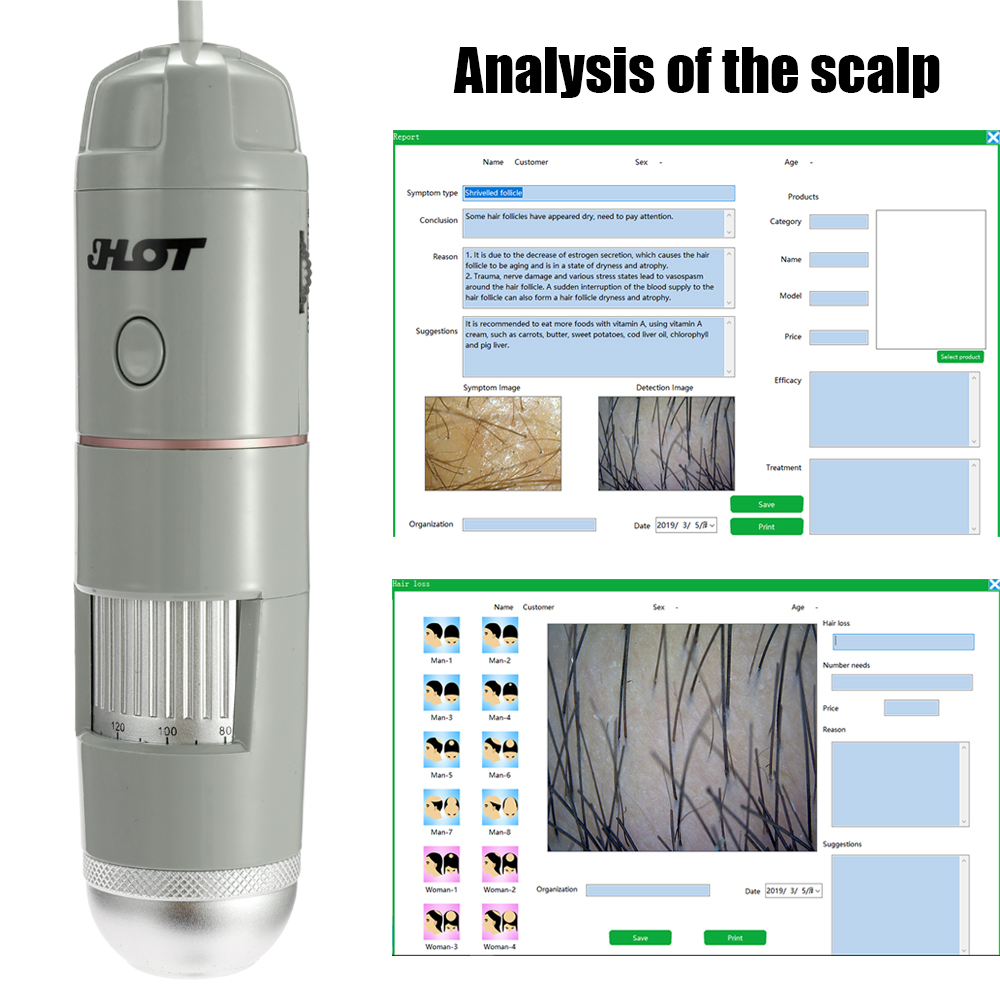 HT-B30S 5-200X Adjustable HD Skin and Hair Follicles of the Scalp Detector Household Portable Skins Tester can be PhotoedHT-B30S 5-200X Adjustable HD Skin and Hair Follicles of the Scalp Detector Household Portable Skins Tester can be Photoed