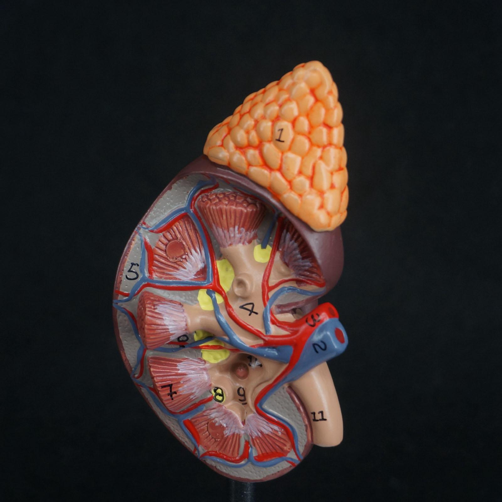 Human Kidney With Adrenal Gland Anatomical Medical Model Urology Anatomy Natural Life Size Teaching Resources