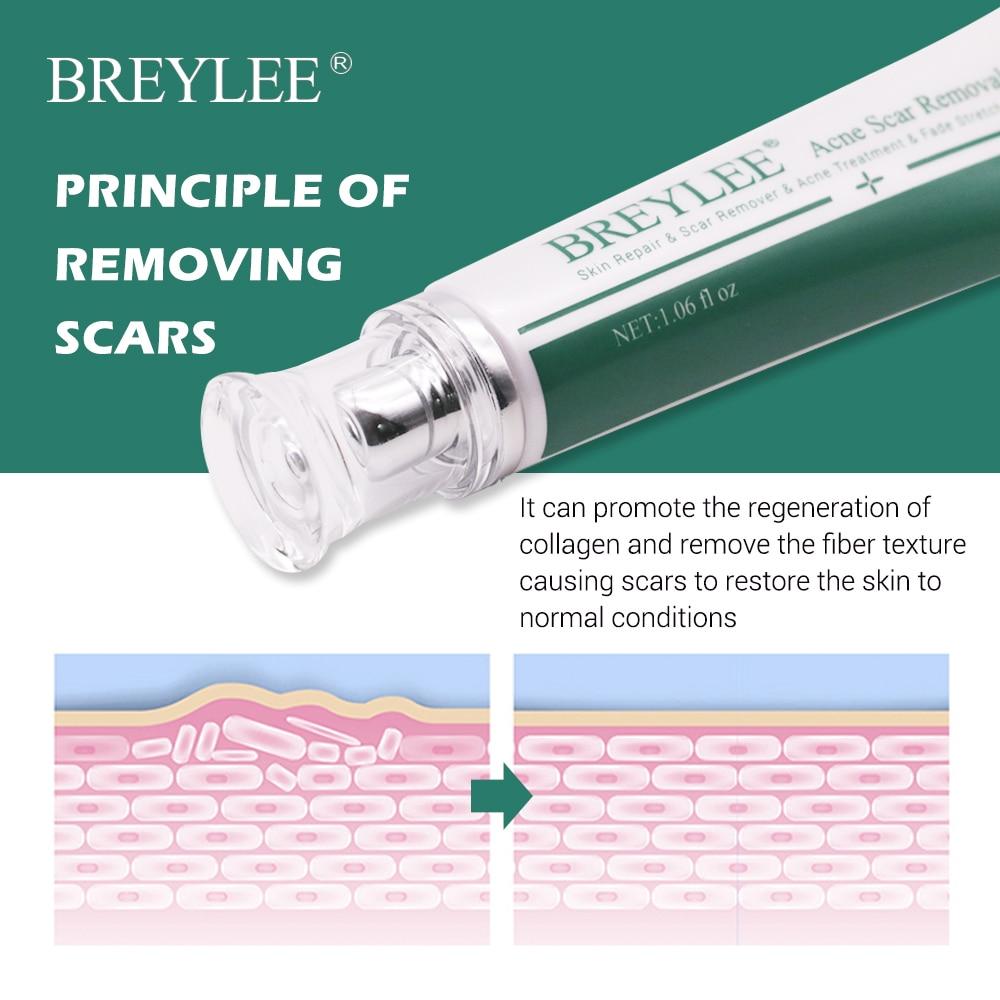 Breylee Acne Scar Removal Cream 30g Face Cream Skin Repair Skin Care Scar Acne Treatment Remove Stretch Marks Whitening Cream