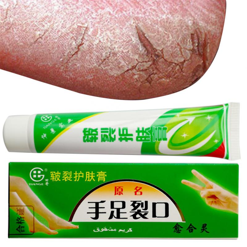 Hand Foot Crack Cream Anti Dry Chapped Cream Treatment Dry Skin Heel Chapped Peeling Repair Chinese Medicinal Ointment #518