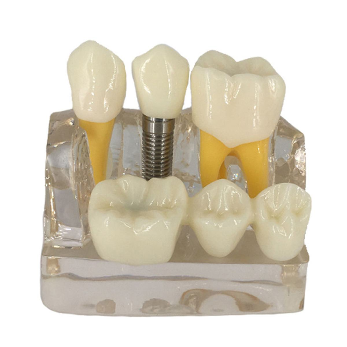 4X Dental Teeth Model For Teaching And Hospital Dentist Material Teeth Model Medical Science Dental Disease Teaching Study New4X Dental Teeth Model For Teaching And Hospital Dentist Material Teeth Model Medical Science Dental Disease Teaching Study New