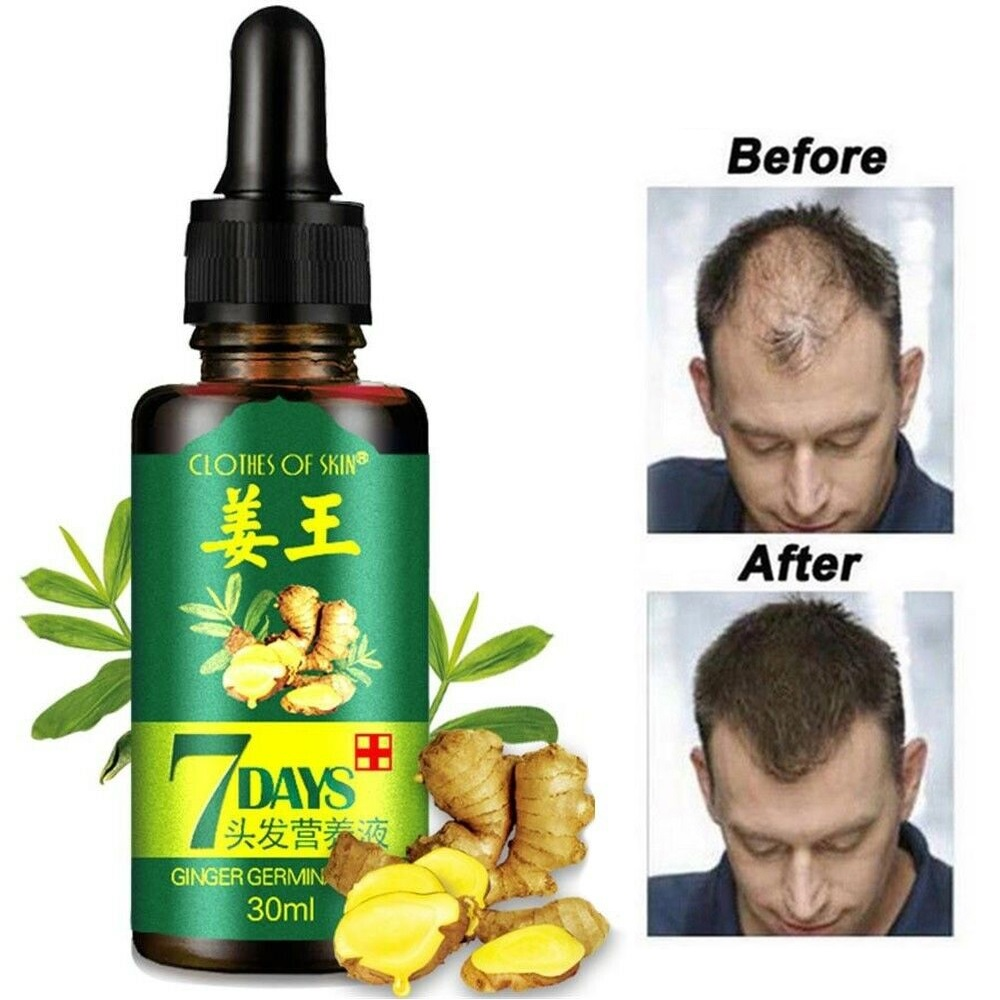 30ml Hair Growth Serum Essence For Adult Anti Preventing Hair Loss Alopecia Liquid Damaged Hair Repair Growing Faster