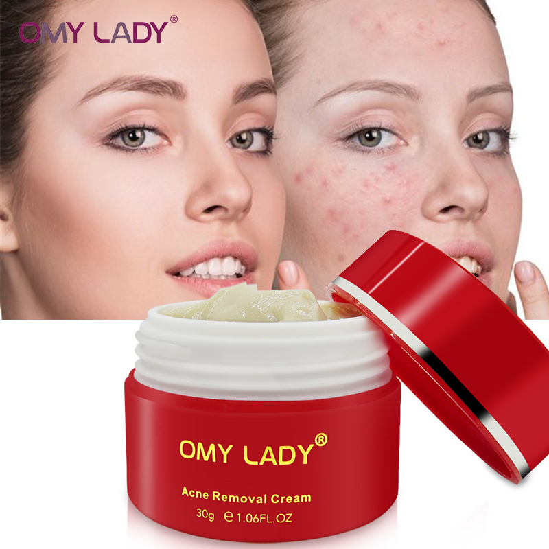 OMY LADY 100% Plant Serum Acne Treatment Gel Cleaning Face Cream Blackhead Remover Spots Scars Repair Comedone