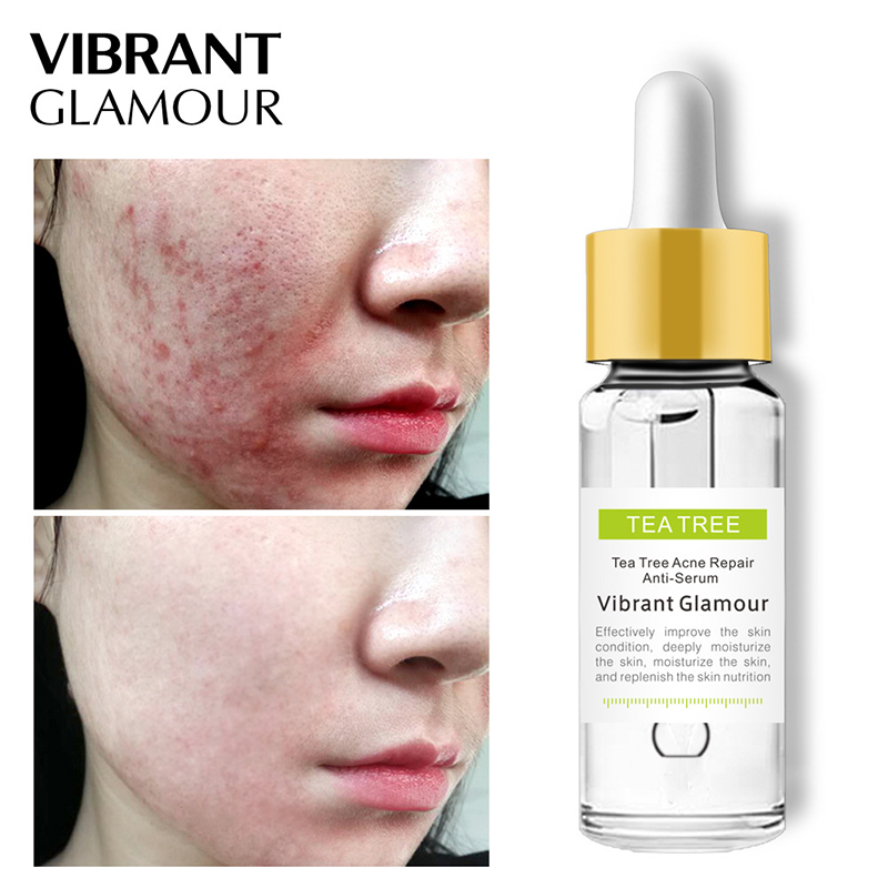 Tea Tree Repair Face Serum Acne Scar Shrink Pores Face Serum Eliminates Acne Treatment Serum Oil Control Essence