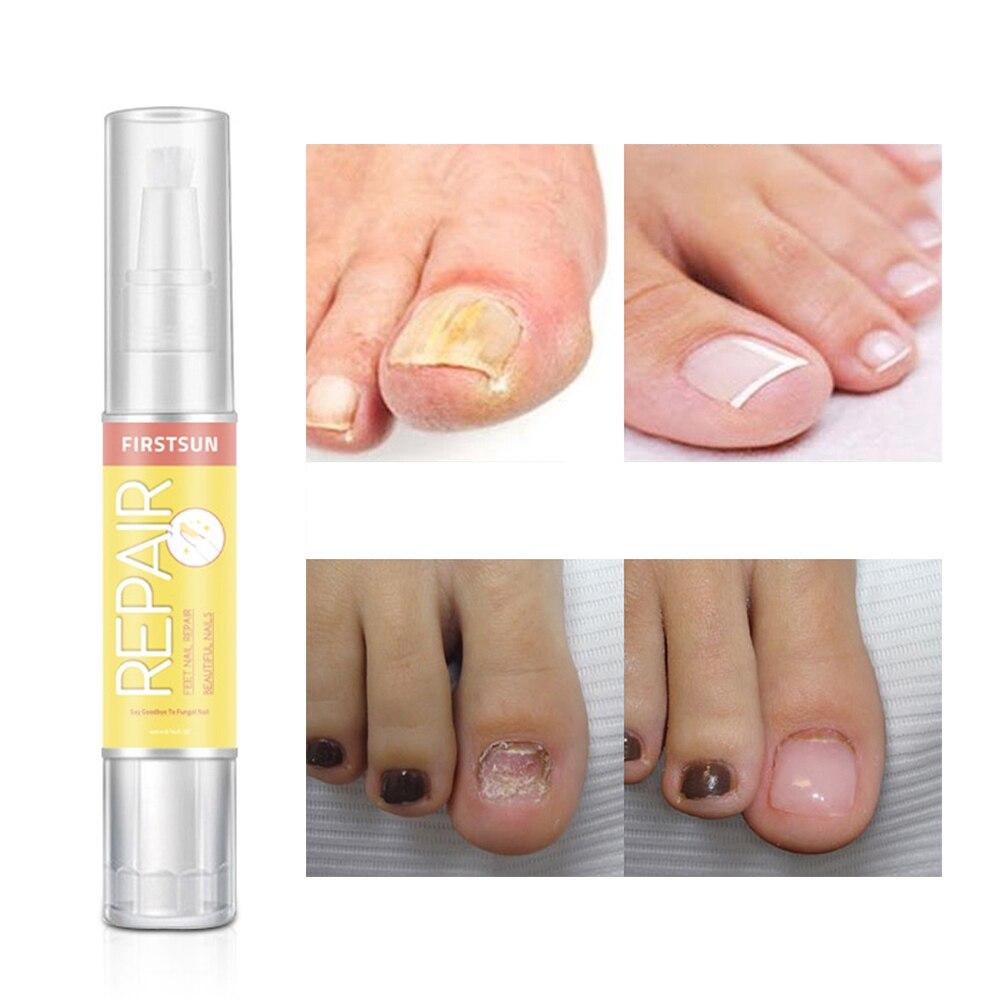 High Quality Fungal Nail Treatment Essence Liquid Whitening Toe Nail ...