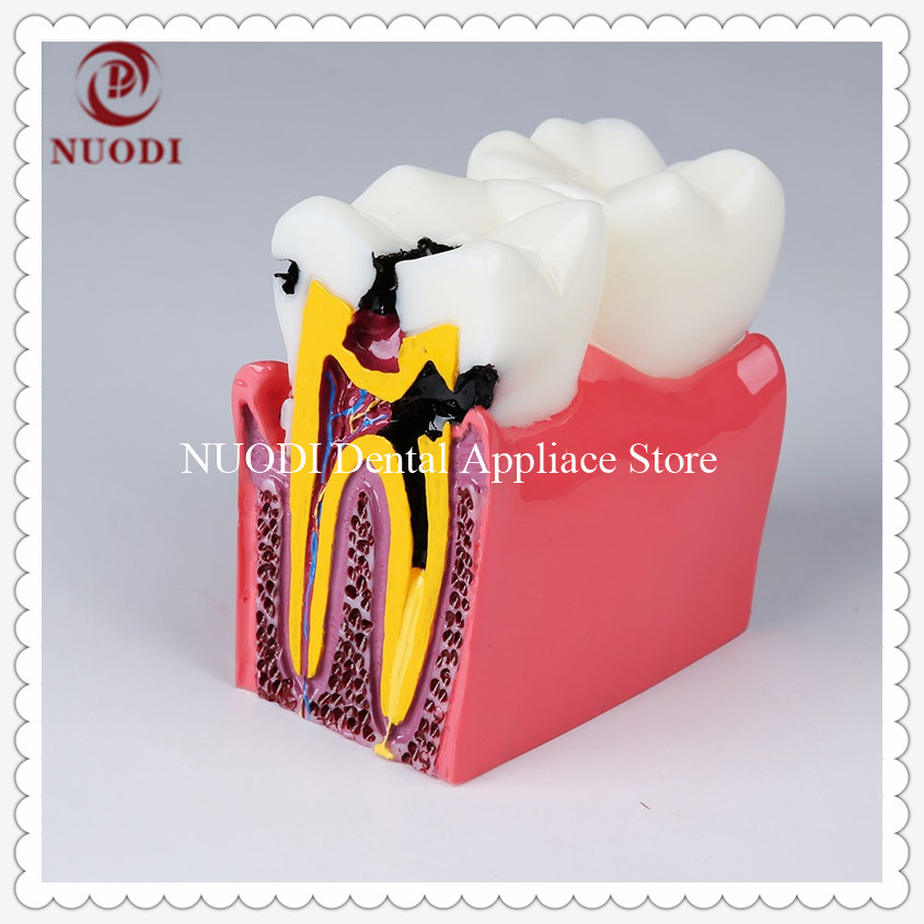 Dental Lab Caries Teeth Model/6Ttimes Caries Comparation Tooth Model/Dental Caries  Teeth Model For Dental Clinic