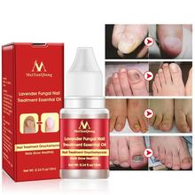 Chinese Herb Lavender Treatment Essential Oil Nail Repair Promote Nails Grow Healthy Fungus Removal Feet Care L35