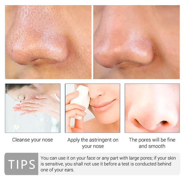 LANBENA Pore Treatment Essence Remover Nose Blackhead Acne Treatment Shrink Pores Skin Face Serum Moisturizing Firming Skin Care