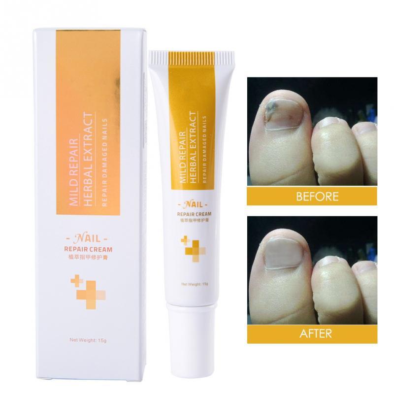 15g Herbaceous Nail Cream Kill Bacteria Fungus Removal Onychomycosis Nail Treatment Repairs Gray Bright Care Pedicure Cream ac