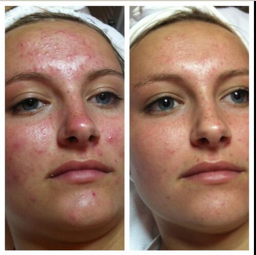 Adapalene Gel-Acne Pimple Retinoid Treatment-Galderma-Adaferin-0.1%15g-Original