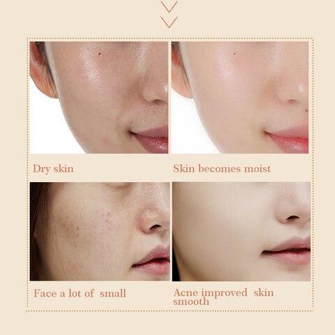 clarear a melanina soro facial anti envelhecimento natural