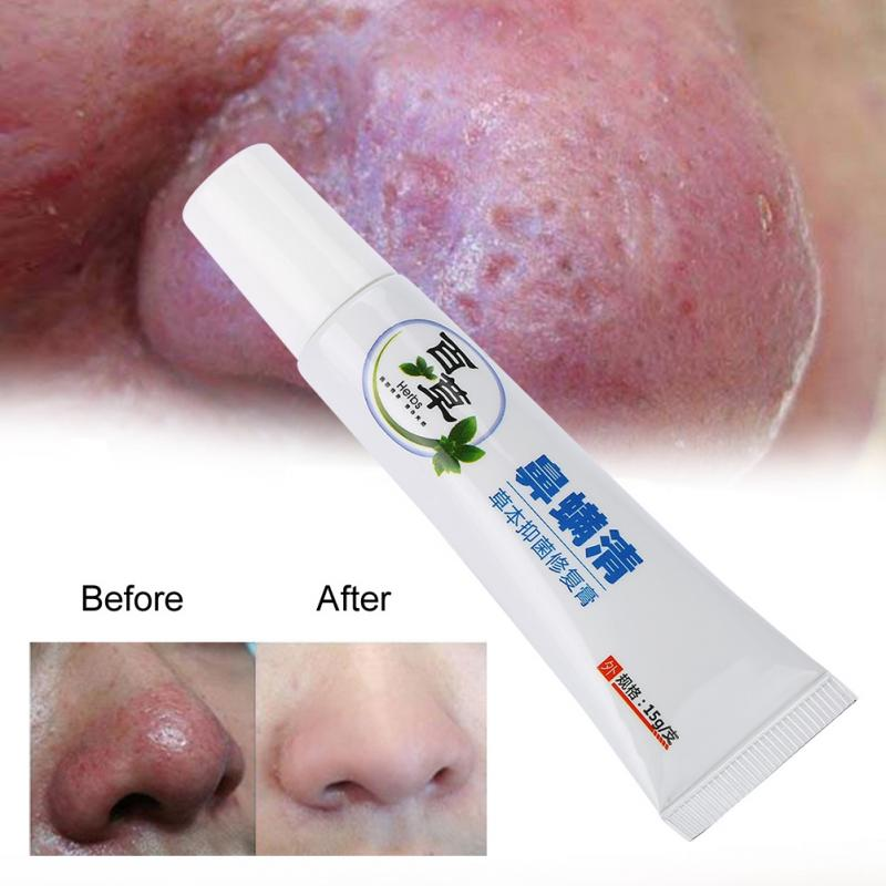 15g Rosacea Treatment Cream Nose Redness Removal Cleaning Antibacterial Gel Skin Care Product Nose Cleaning Cream