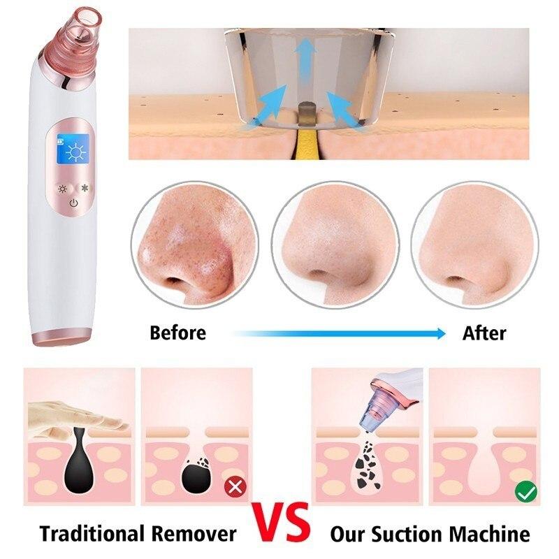 Aspirateur électrique points noirs dissolvant acné bouton dissolvant outil visage aspirateur pores nettoyeur soins de la peau diamant Peeling pores propre Machine