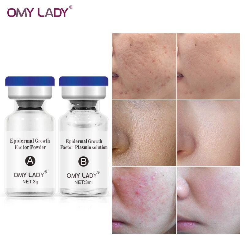 OMYLADY Skin Rejuvenation Serum Acne Treatment Repair Factor Lyophilized Powder Face Skin Care Ageless Serum Face Cream