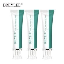 Breylee 3pcs Acne Scar Removal Cream Face Cream Skin Repair Skin Care Scar Acne Treatment Remove Stretch Marks Whitening Cream