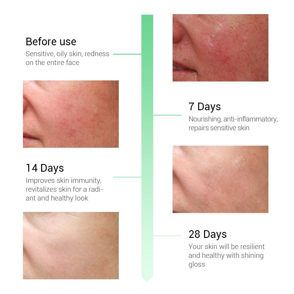 Breylee Soothing Repairing Serum Repair Sensitive Skin Remove Redness Face Skin Care Acne Scar Removal Snail Serum Beauty 10pcs