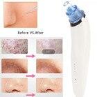 Electric Blackhead Vacuum Acne Cleaner Pore Blemish Remover Electric Skin Facial Cleanser Care Pore Peeling Tool Nose machine