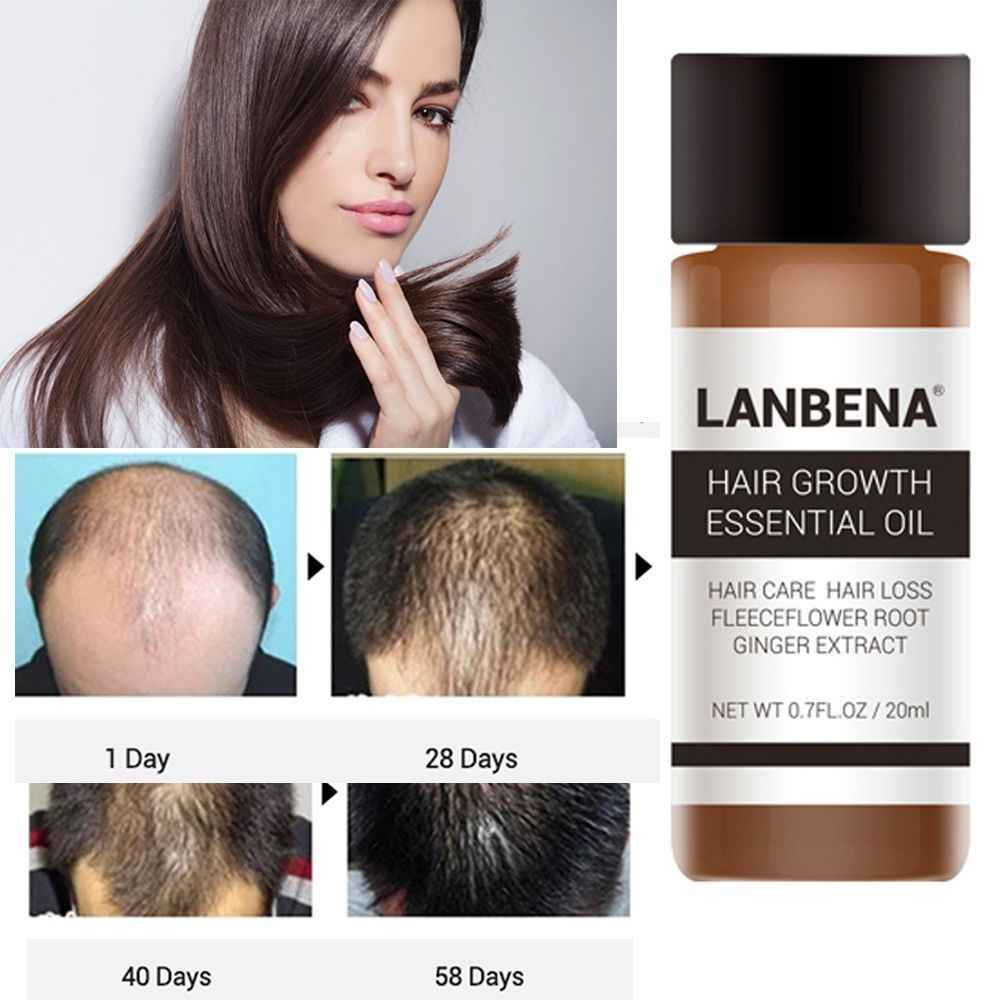 LanBeNA Powerful Hair Growth Essential Oil Treatment Anti Hair Loss Products Nutrition Ginger Extract Hair Care Essence TSLM1