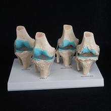 Anatomik İnsan dejeneratif diz eklemi hastalığı modeli tıbbi iskelet anatomi öğrenme kaynakları