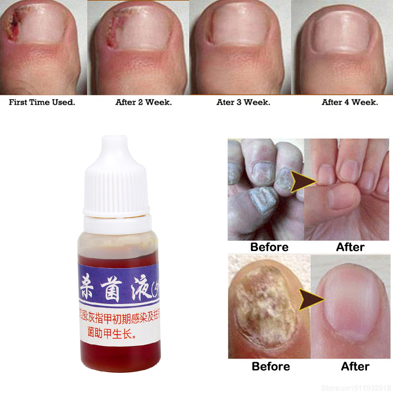 10ml Liquid Nail Infection Repair Pen Onychomycosis Anti Fungal Toe Fungus Treatment Toe Finger Nail Health Accessories TSLM1