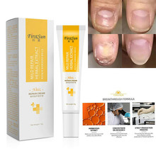 Nail Foot Protector Skin Care Cream Fungus Treatment Herb Nails Repair