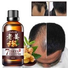 30 мл быстрое эфирное масло для роста волос имбирь эссенция эффективный экстракт против выпадения волос питают корни для мужчин и женщин здоровье TSLM1