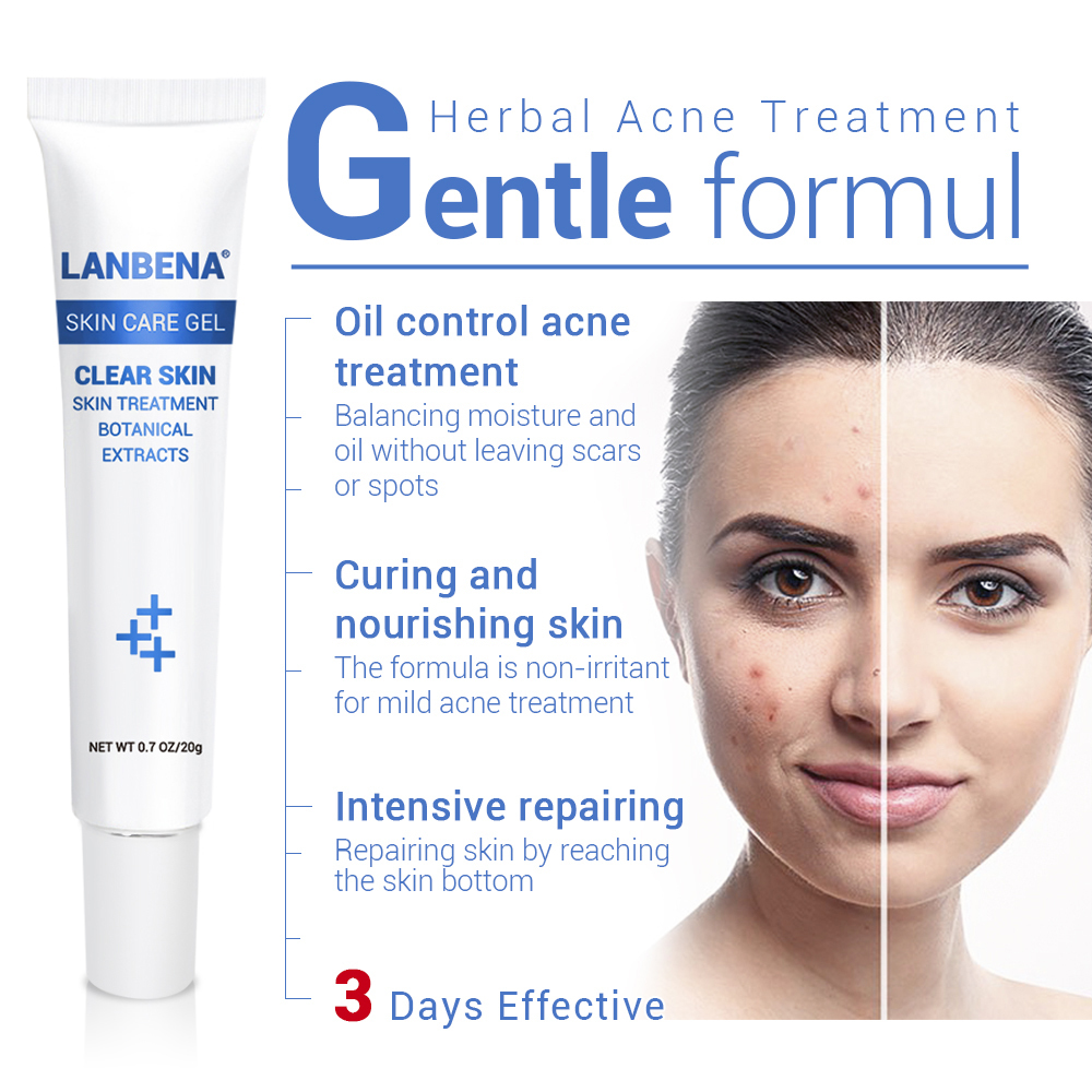 Lanbena Acne Treatment Gel Acne Cleaning Cream Blackhead Remover Acne Spots Face Acne Scars Skin Care Repair Comedone Pimple