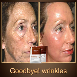 Image 2 - Fonce tipo de reparo anti rugas máscara facial de seda hidratante levantamento firmando rosto seis peptides anti envelhecimento folha máscara 10 piece