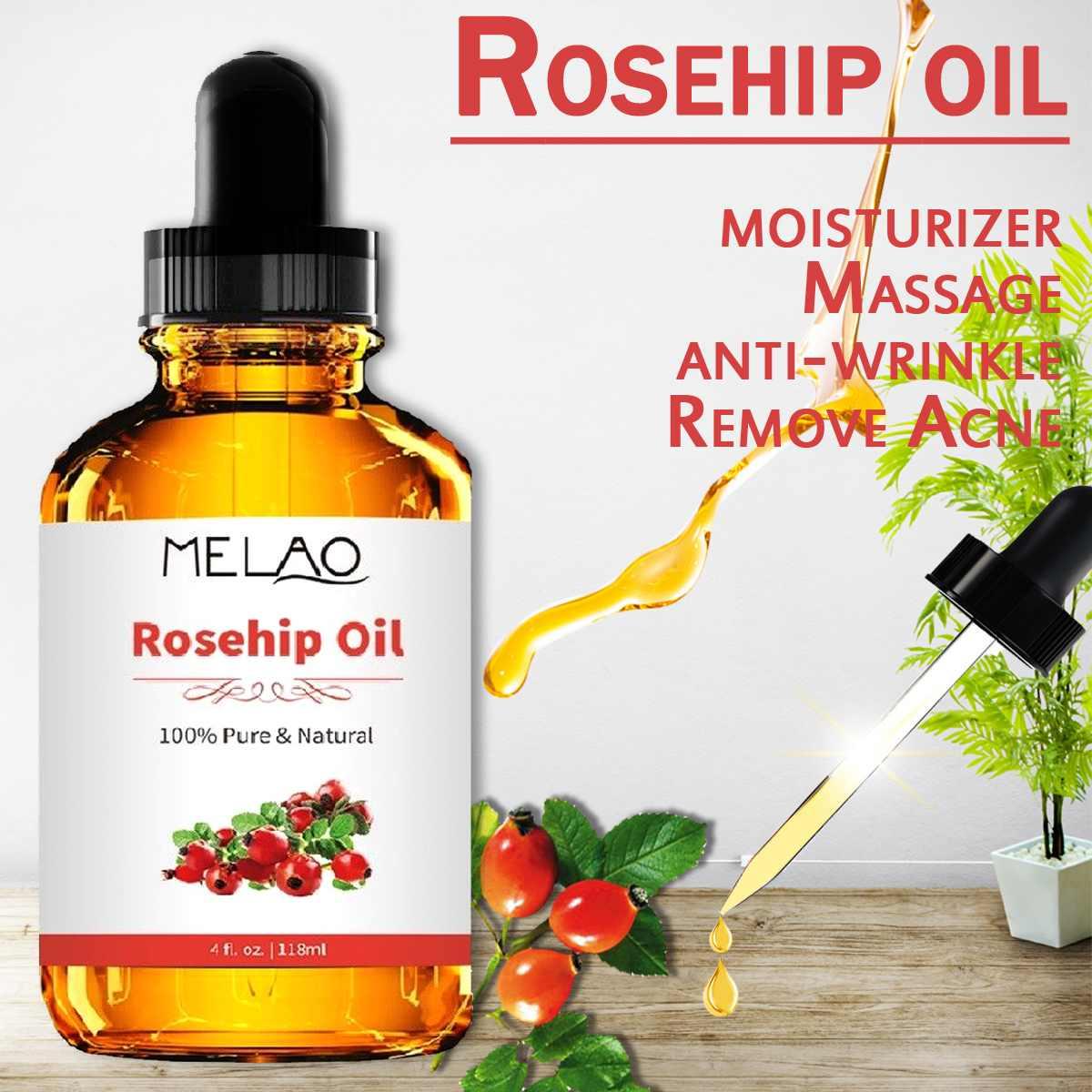 118ml Organic Pure 100% Rosehip Essential Oil Pure Rose Essential Oil Skin Care Body or Face Massage Oil118ml Organic Pure 100% Rosehip Essential Oil Pure Rose Essential Oil Skin Care Body or Face Massage Oil