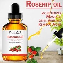 118ml Organic Pure 100% Rosehip Essential Oil Pure Rose