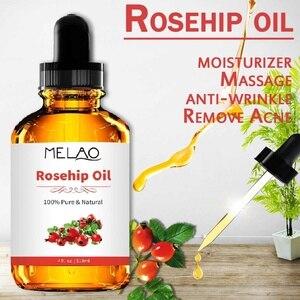 118ml Organic Pure 100% Rosehi