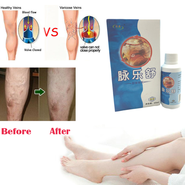 itchy varicose veins remedy