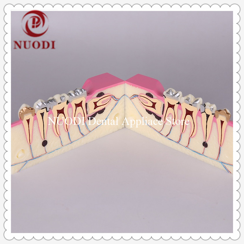 Dental Molar Teeth Model/Group Education Molar cross section study model/Oral cavity Molar cross Tooth ModelDental Molar Teeth Model/Group Education Molar cross section study model/Oral cavity Molar cross Tooth Model